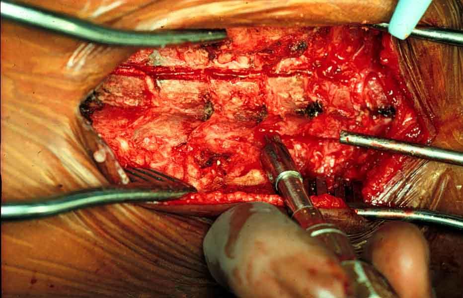 Neurosurgery and Spinal Cord Tumors Neurosurgery and Spinal Cord Tumors new images