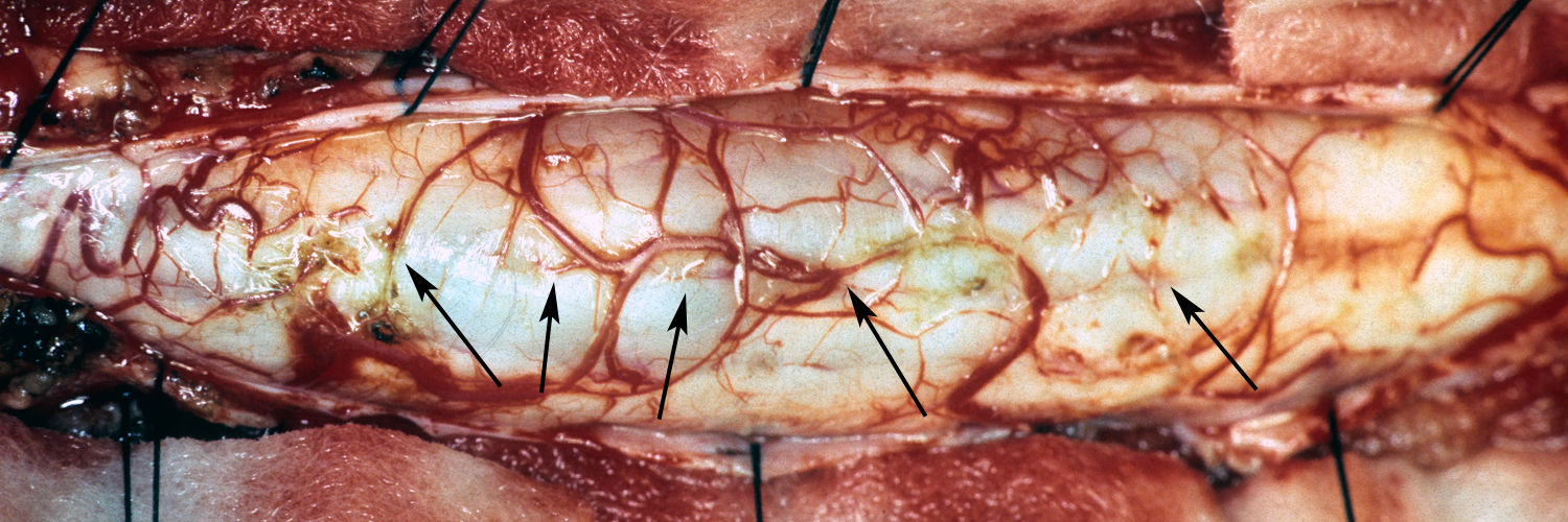 Pial vessels fo spinal cord penetrating median raphe