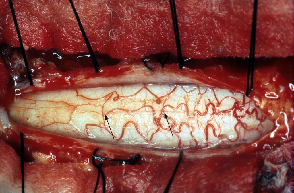 neurosurgery operation