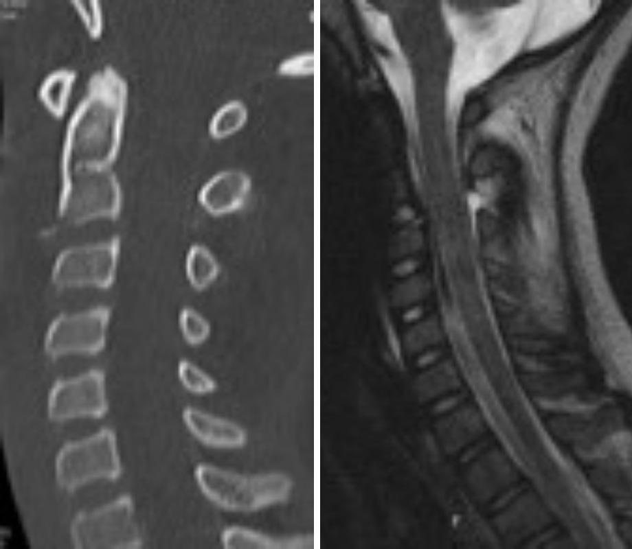 Teardrop fracture of C2